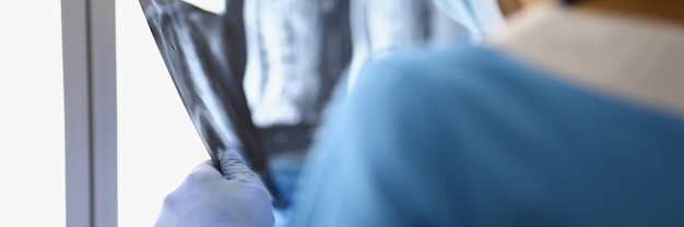 Chirurg mężczyzna stoi w gabinecie i patrzy na plecy prześwietlenia, patrz uważnie na lekarza