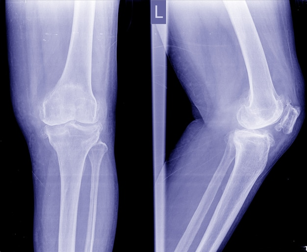 Choroba zwyrodnieniowa stawów kolanowych (oa). film x-ray apand widok z boku na wąską przestrzeń stawu kolanowego
