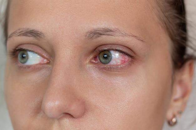 Choroby siatkówki oka zbliżenie kobiecych oczu z czerwonymi zaognionymi i rozszerzonymi naczynkami