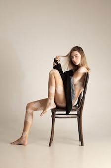 Ciało pięknej młodej kobiety z bielactwem. choroby autoimmunologiczne. brak pigmentacji skóry. włączające piękno.