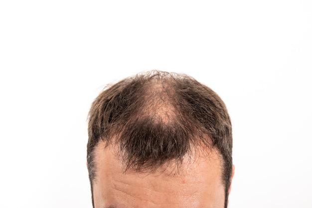 Close-up łysiejąca głowa młodego człowieka na białym tle na białym tle.
