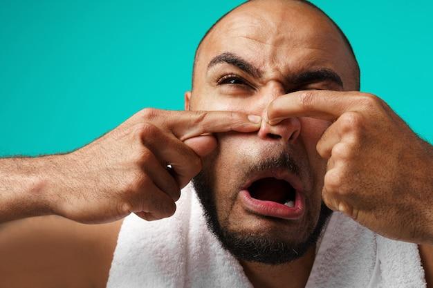 Close-up portret czarnego mężczyzny wyciska pryszcz na jego twarz