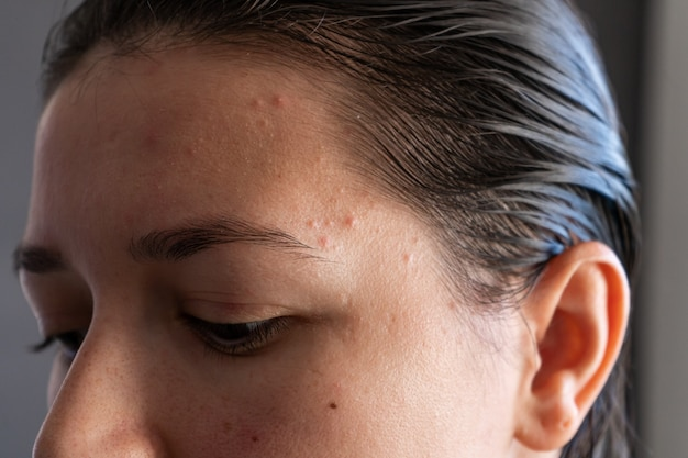 Close-up portret dziewczyny wyciska pryszcz na czole