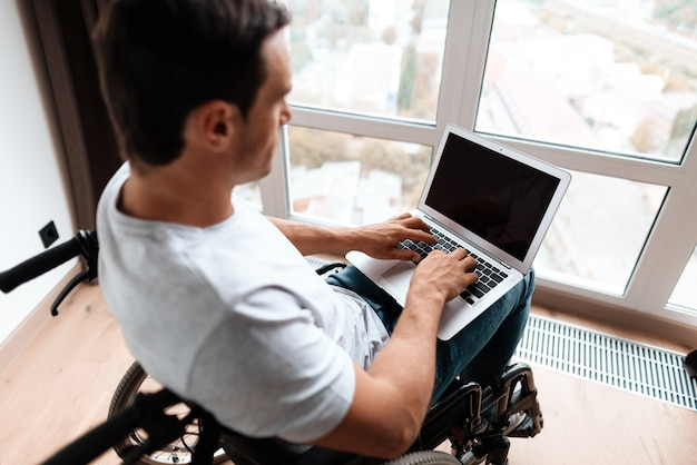 Closeup of disabled man uses laptop and typing.