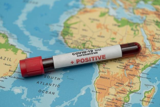 Covid 19 koronawirus, zainfekowana próbka krwi w probówce, na mapie świata, rozprzestrzenianie się choroby, pandemia