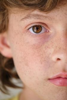Crop boy z brązowym okiem i piegami