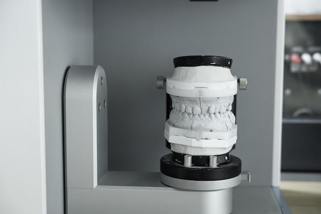 Cyfrowy skan modelu zębów gipsowych w nowoczesnym skanerze 3d. inteligentne doskonałe technologie we współczesnej stomatologii.