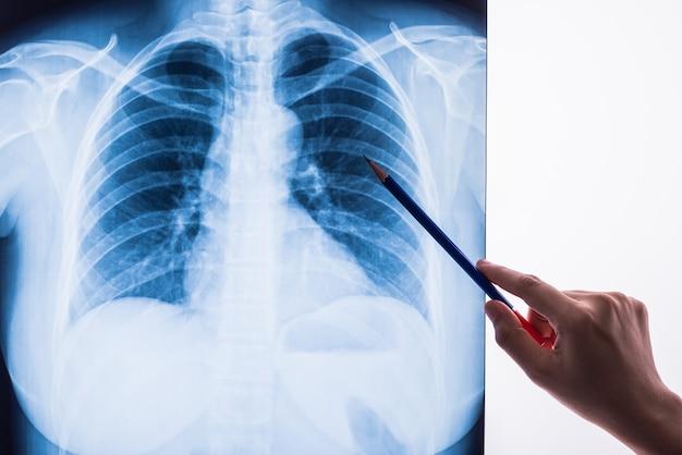 Czarno-białe zdjęcie rentgenowskie ludzka klatka piersiowa dla diagnostyki medycznej