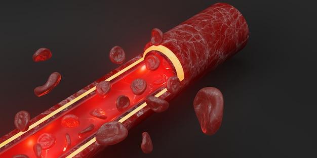 Czerwone krwinki warstwa skóry żyły ilustracja 3d chirurgia wewnątrznaczyniowa