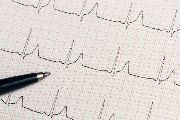 Część elektrokardiogramu wydrukowana na papierze