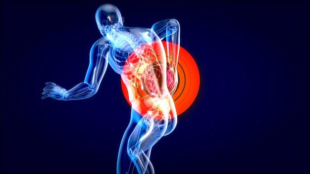 Człowiek cierpiący na silny ból pleców