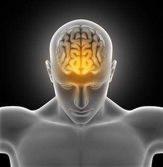 Człowiek z bólem głowy