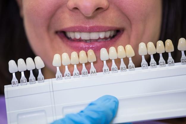Dentysta bada pacjentki z odcieniami zębów