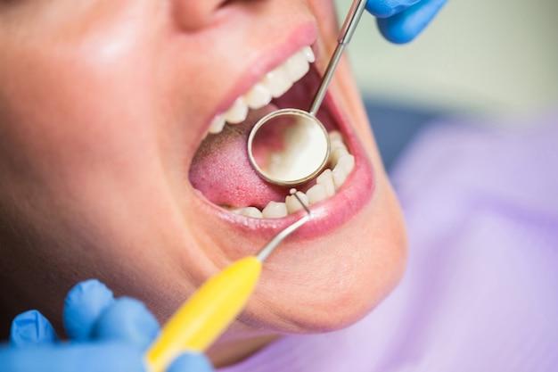 Dentysta egzamininuje żeńskich cierpliwych zęby