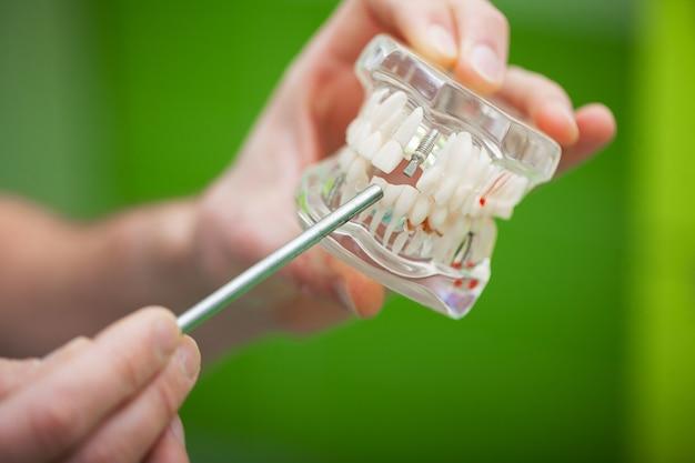 Dentysta pokazuje problem zęba na modelu szczęki