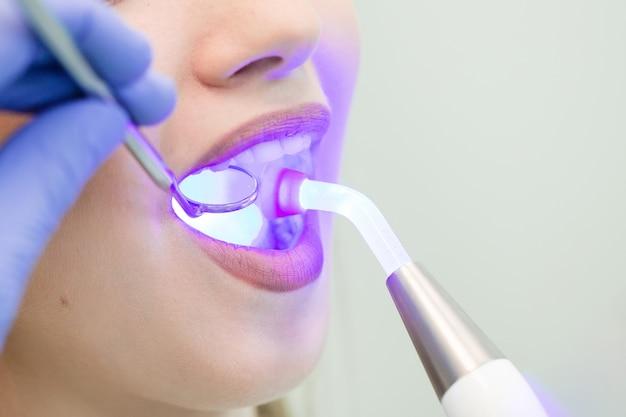 Dentysta robi procedurę z stomatologicznym leczącym światłem uv w klinice