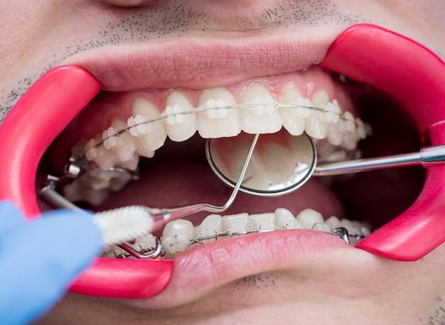 Dentysta trzyma sondę i lustro i sprawdza zęby za pomocą wsporników w gabinecie stomatologicznym