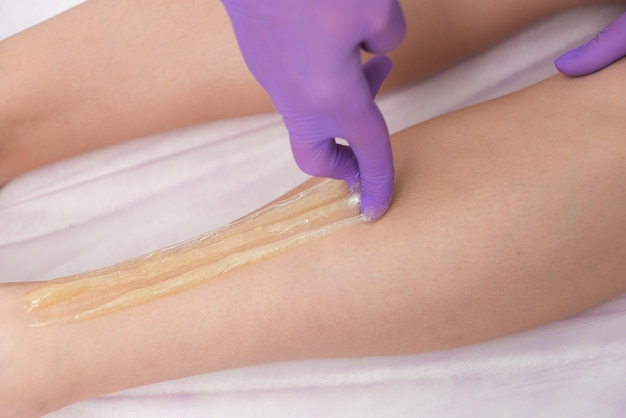 Depilacja cukrowa z płynnym cukrem na nogach