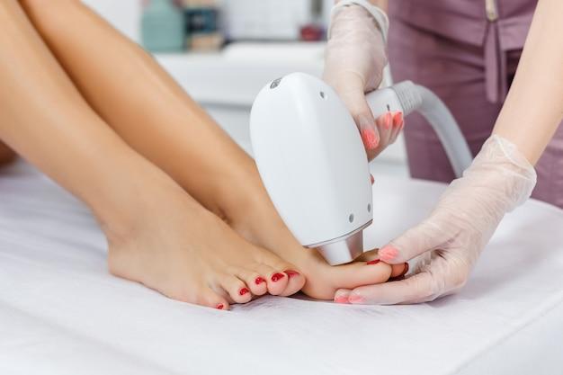 Depilacja laserowa na palcach kosmetolog wykonujący depilację laserową na kobiecych nogach manipulator zbliżenia