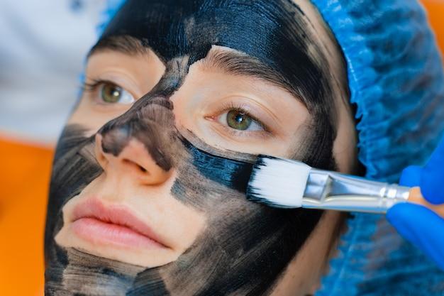 Dermatolog rozprowadza na twarzy czarną maskę w celu fotoodmładzania laserowego i peelingu węglowego. dermatologia i kosmetologia. korzystanie z lasera chirurgicznego.