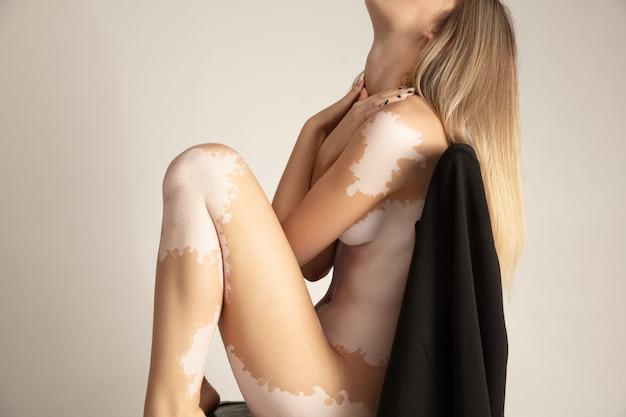 Detale. ciało pięknej młodej kobiety z bielactwem. choroby autoimmunologiczne. brak pigmentacji skóry. inkluzywne piękno. nagi portret modelki kaukaskiej, dopasowany i delikatny. skóra z białymi ubytkami.