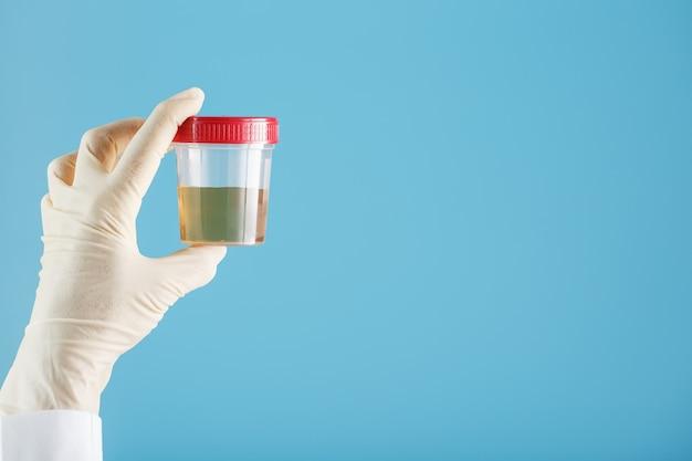 Dłoń lekarza w rękawiczce trzyma przezroczysty pojemnik z testem moczu