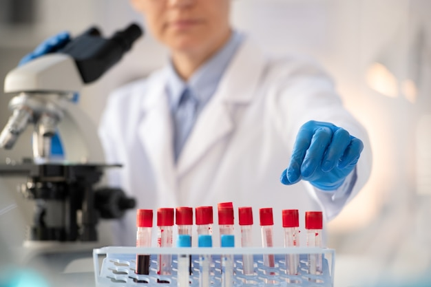 Dłoń pracownika laboratorium w białym fartuchu w rękawiczce, która bierze małą kolbę z próbką krwi koronawirusa, aby obejrzeć ją pod mikroskopem