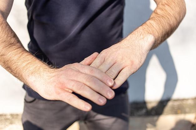 Dłonie bardzo suche w dotyku, łuszczą się pod wpływem mycia alkoholu