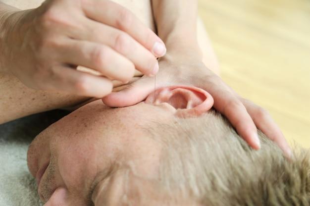 Dłonie therapta przykładają igły do punktów akupunkturowych na uchu pacjenta