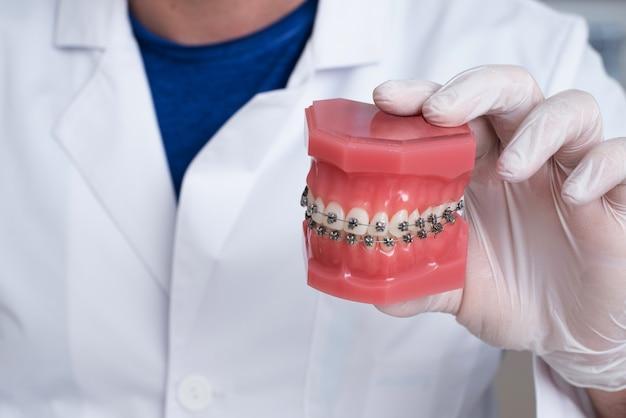 Doktor ortodonta pokazuje, jak układa się system aparatów ortodontycznych na zębach