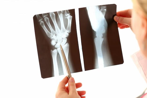 Doktorska żeńska ręka trzyma rękę xray fotografię