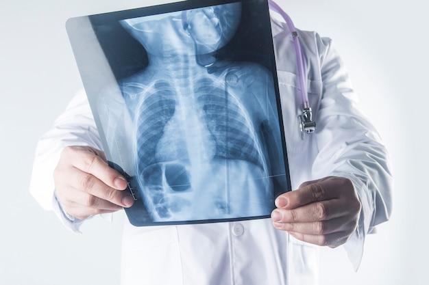 Doktorski egzamininuje klatki piersiowej promieniowania rentgenowskiego film pacjent przy szpitalem.