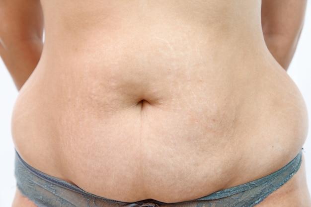 Duży brzuch z rozstępami młodej kobiety z nadwagą.