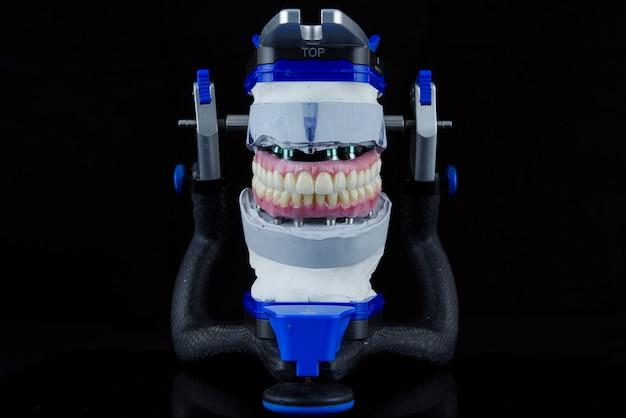 Dwie ceramiczne protezy dentystyczne w artykulatorze dentystycznym