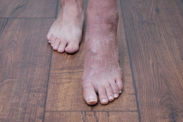 Dwie nogi są na podłodze, jedna noga zdrowa, druga noga po gipsie. różnice między stopami