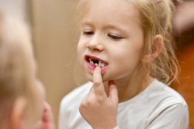 Dziecko dziewczynka patrzy w lustro na zmianę zębów dziecka w jej ustach