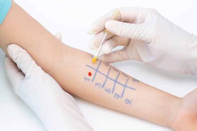 Dziecko przechodzące zabieg skórnego testu alergenowego w poradni.