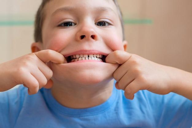 Dziecko rozciąga usta i pokazuje jej zęby