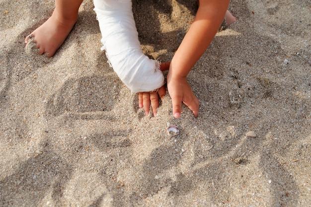 Dziecko z gipsu na ręce, grając w piasku na plaży nad morzem.