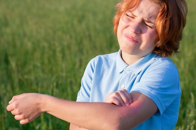 Dziewczyna cierpi na ukąszenie komara. młoda kobieta drapie swędzenie ręką. choroby skórne. czerwony, płonący wokół swędzącego obszaru. kobieta z alergiczną wysypką, wrażliwą skórą. reakcja alergiczna.