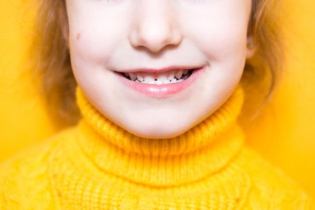 Dziewczyna pokazuje jej zęby - zgryz patologiczny, wady zgryzu, zgryz. stomatologia dziecięca i periodontologia, korekcja zgryzu. zdrowie i pielęgnacja zębów, leczenie próchnicy, zębów mlecznych. górna szczęka spoczywa na dziąśle.