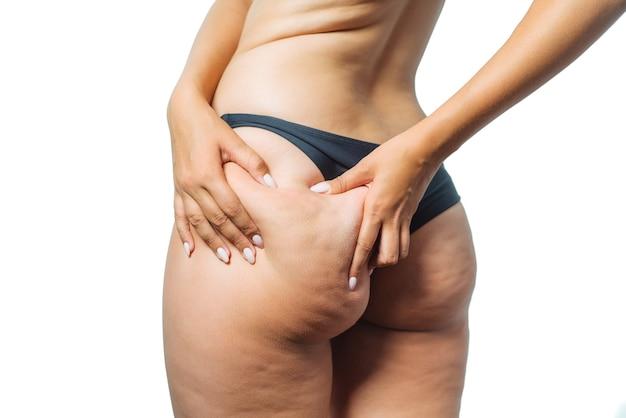 Dziewczyna pokazuje trzymanie i odpychanie skóry nóg z cellulitem, skórką pomarańczową. leczenie i usuwanie nadwagi, odkładanie się podskórnej tkanki tłuszczowej.