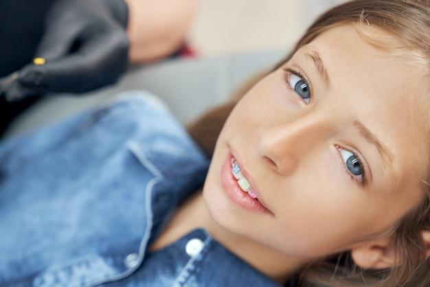 Dziewczyna pokazuje zęby z metalowymi nawiasami klamrowymi.