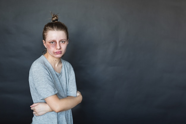 Dziewczyna z podbitym okiem po walce z mężem i chłopakiem stoi na ciemnej ścianie, przytula się i jest smutna. przemoc w rodzinie. agresja męża