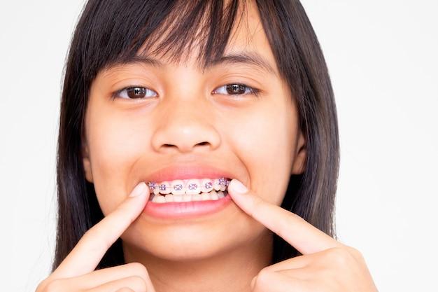 Dziewczyna z zębów nawiasy klamrowe uśmiecha się i szczęśliwy