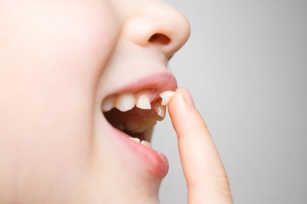 Dziewczynka potrząsając palcem chwiejny ząb mleczny w otwartych ustach.
