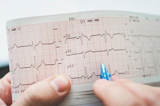 Elektrokardiogram w rękach lekarza. kontrola zdrowia serca.