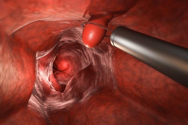 Endoskop renderujący 3d usuwa polip okrężnicy za pomocą pętli drucianej