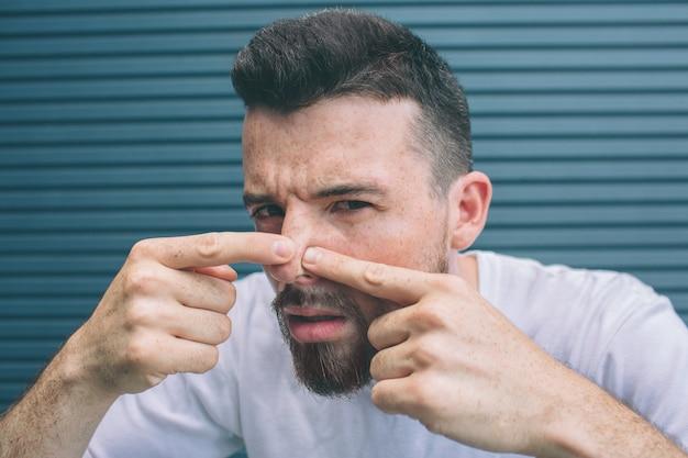 Facet ściska pryszcze na nosie. na białym tle na paski