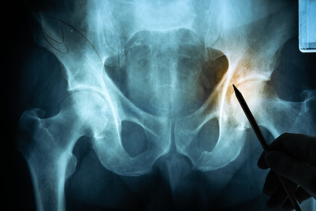 Film rentgenowski z ręką lekarza